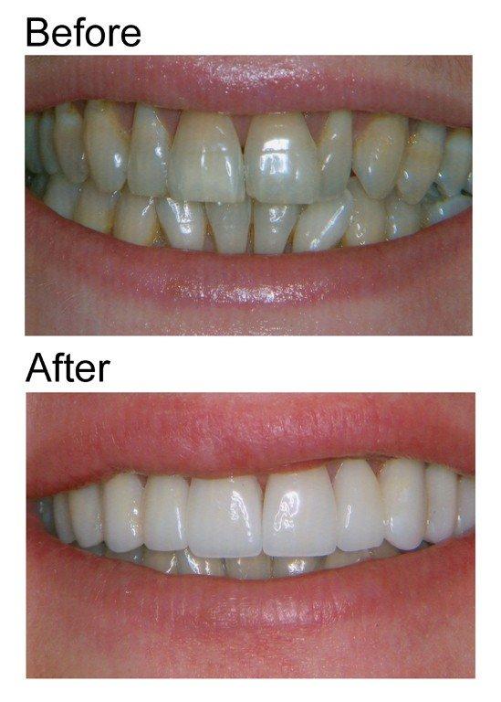 smile makeover 1