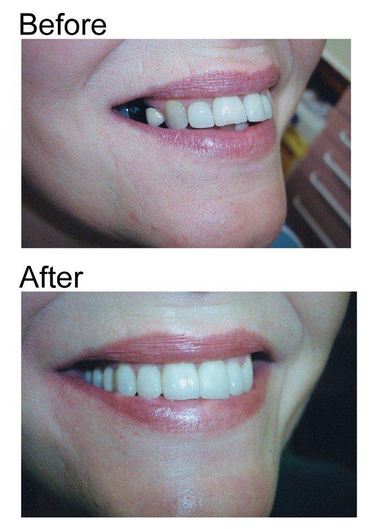 smile makeover 3