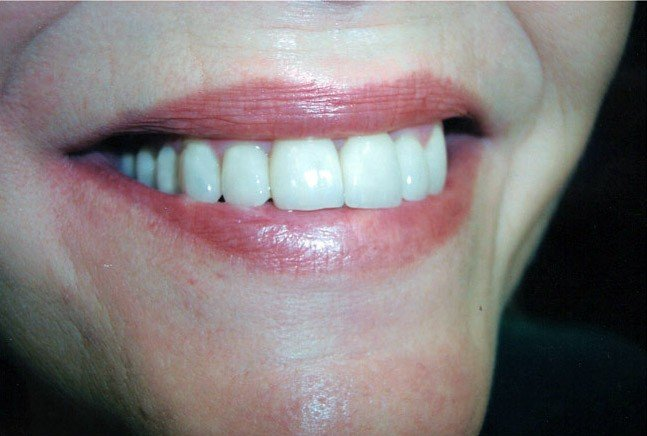 Veneers Cosmetic Dentist Brentwood Essex